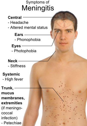 Signs and symptoms of Meningitis. #provestra