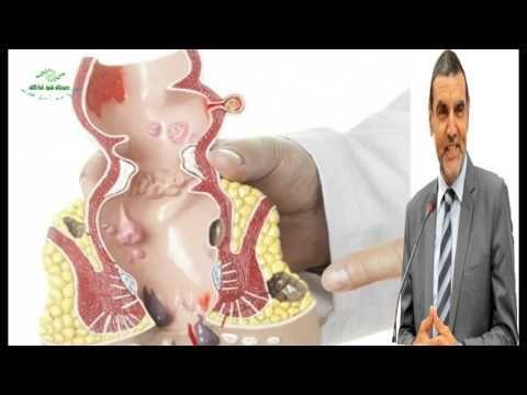ماهي أعراض البواسير وماهو علاج البواسير الداخلية والخارجية Dr Mohamed Al Fayed محمد الفايد Fayed Youtube Doctor Youtube
