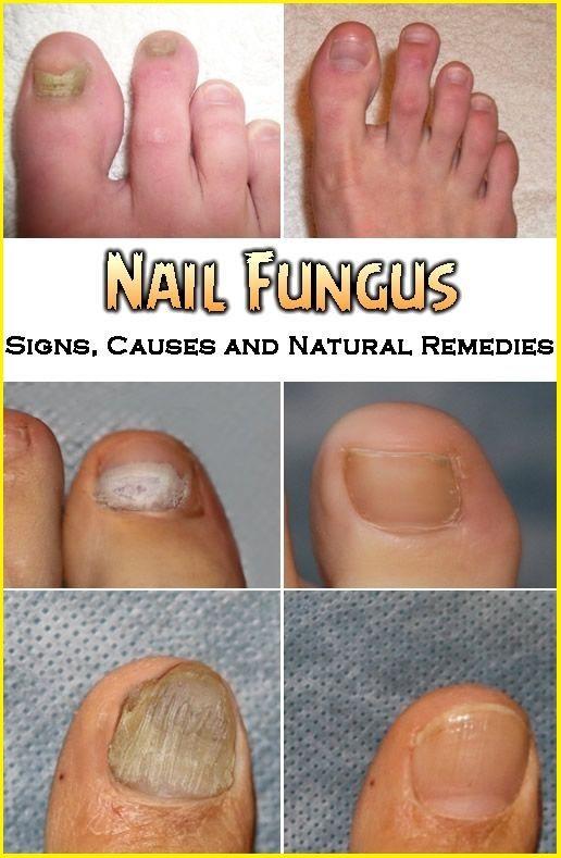 Signs Of Nail Fungus Causes And Natural Remedies Toenail