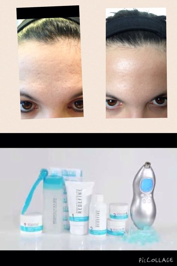 Used Rodan and Fields redefine for just one week! Theses are my results!   Jennifercarter.myrandf.com