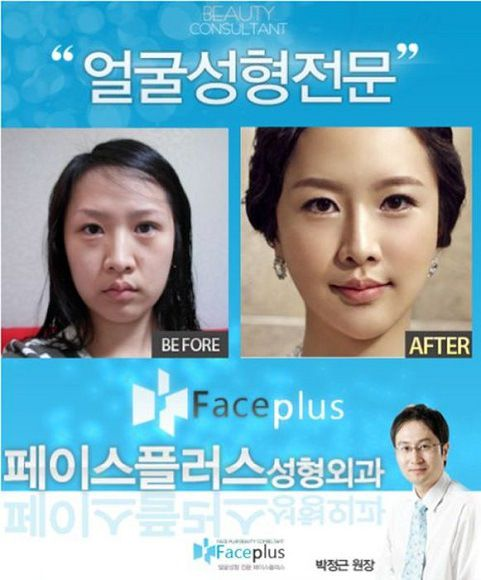 Korean Plastic Surgery Before After Crazy Plastic Surgery - plastic surgery consultant sample resume