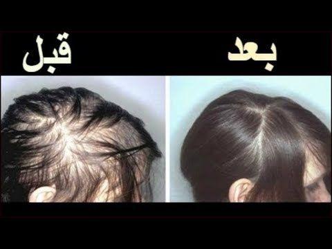 سبحان الله قامت بوضعه علي الرأس وبعد اسبوع نمو الشعر وملأ الفراغات بسرعه وايضا للصلع و الثعلبة Youtube Hair Mask For Growth Black Hair Tips Hair Up Styles