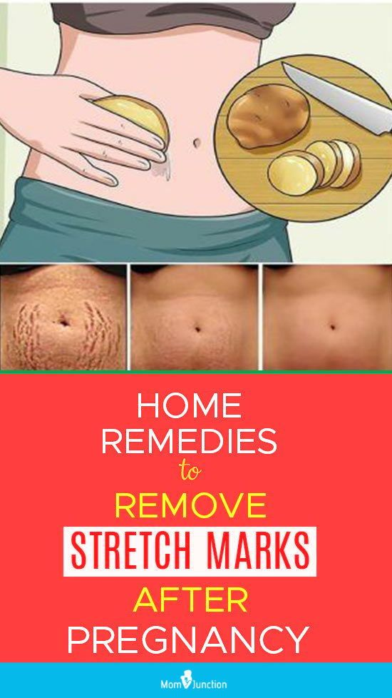be1c59669f2a5efbd6665cded4f49b40 - How To Get Rid Of Pregnancy Stretch Marks On Belly