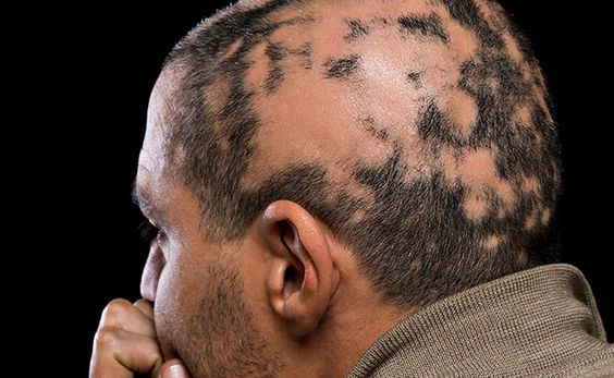 10 Things You Didn't Know About Alopecia