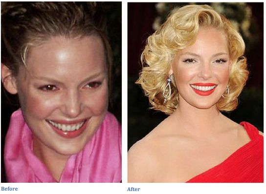 San Diego Smile Dentistry | Celebrity Teeth Before and After