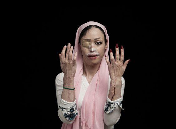 "Sony World Photography Awards 2016 - Premio L'Iris d'Or: ""Fire of Hatred"", por Asghar Khamseh"
