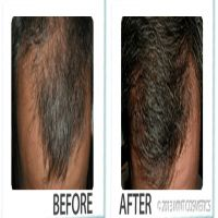 Finding the right solution to deal with hair loss