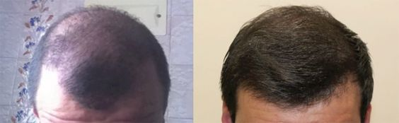 FUE Hair Transplant Result 3340 Grafts HLC – repair: https://www.youtube.com/watch?v=oj-XEaRE9ZE