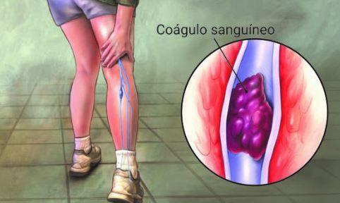 sintomas coagulo sanguineo pierna