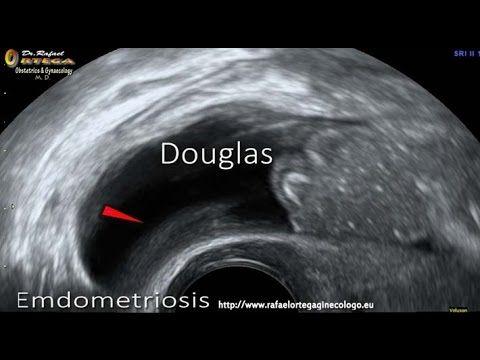 ¿Qué es una prueba de ultrasonido de próstata retroperitoneal?