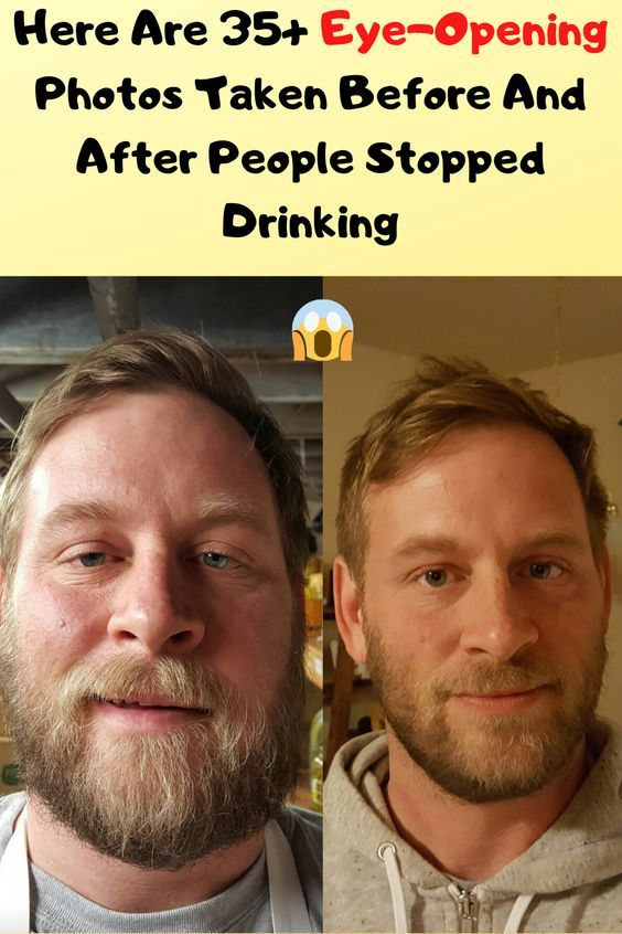 Here Are 35 Eye Opening Photos Taken Before And After People Stopped Drinking In 2020 Good Jokes Stop Drinking Hilarious