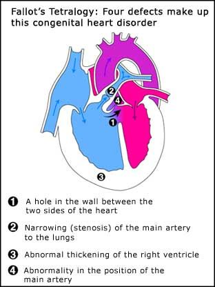 acyanotic heart defects in neonates - Google Search: