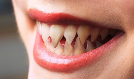 Sharp Teeth REALLY WTF Pinterest To Be Pretty Much And