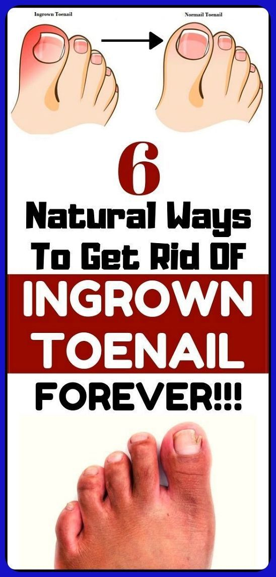 bf27d1e82ef53227ad30990251f6ca27 - How To Get An Ingrown Toenail Out Without It Hurting