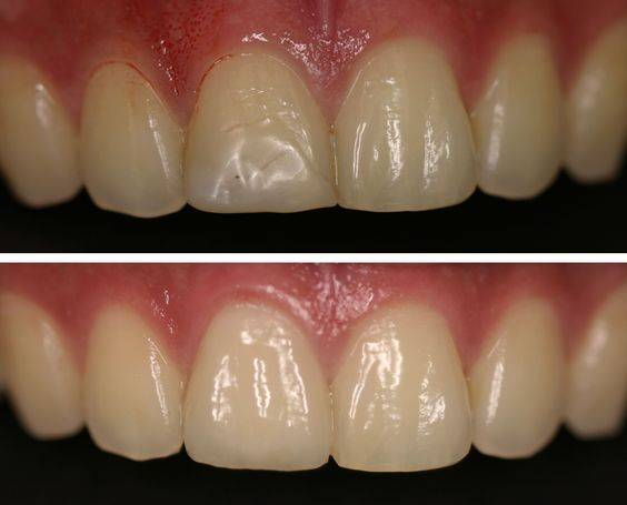 Before and After: A composite filling on the front tooth ...