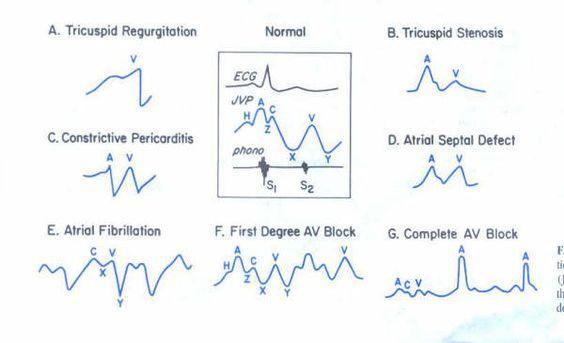 Cardiology Discharge Summary Template  Cardiology Summary And