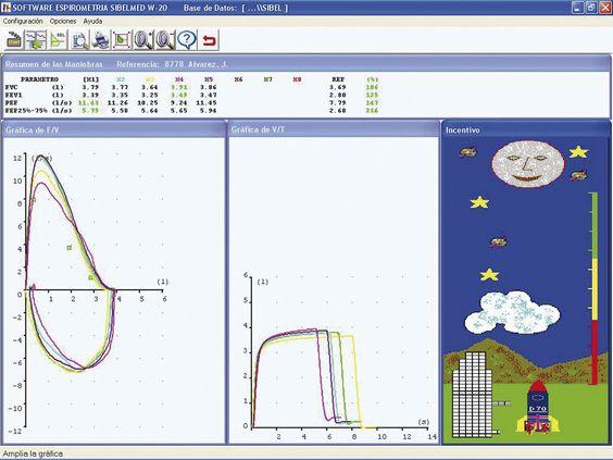 Software W20s, potente herramienta para la transferencia, análisis, almacenamiento y/o registro de señales espirométricas.