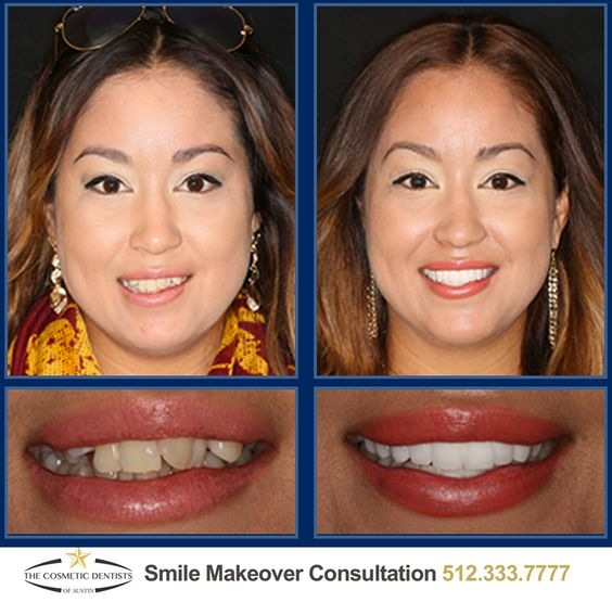 Austin Sedation Dentistry: The Smile Solution One of the biggest advantages of sedation dentistry is that it allows several dental treatments to be performed in one visit which saves you time and makes your cosmetic dentistry treatment much more convenient for your busy schedule. #austincosmeticdentist #austincosmeticdentistry #austinsedationdentist #austinsedationdentistry #cosmeticdentist #dentalimplants #austinreconstructivedentist #austinsmilemakeover #smilemakeover #sedationdentistry