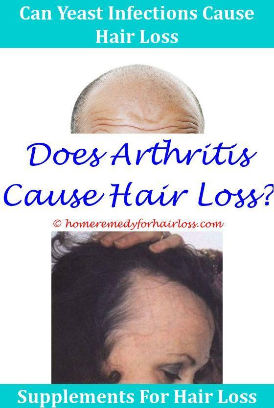 Cartia And Hair Loss Hair Loss Waxy Yellow Buildup On Dog Causing Hair Loss Will Probiotics Help Hair Help Hair Loss Patchy Hair Loss Supplements For Hair Loss