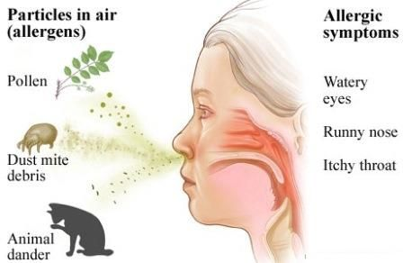 Rhinitis, Allergic – Causes, Symptoms, Diagnosis, Treatment and Ongoing care - IgE-mediated inflammation of the nasal mucosa following exposure to airborne allergens   Read more: http://health.tipsdiscover.com/rhinitis-allergic-causes-symptoms-diagnosis-treatment-ongoing-care/#ixzz2lkK5RAYT