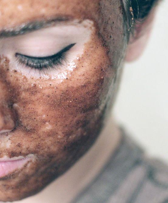 Natural Acne Miracle Mask