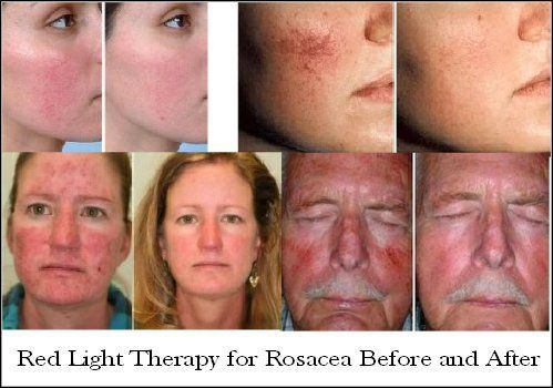 Red Light Therapy Reduce Wrinkles Age Spots Acne More Red Light Therapy Led Light Therapy Red Light Therapy Benefits
