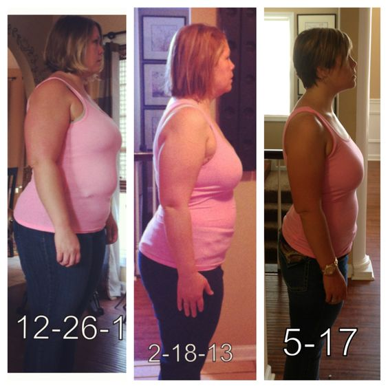 Lap band success 58 lbs in 4 5 months