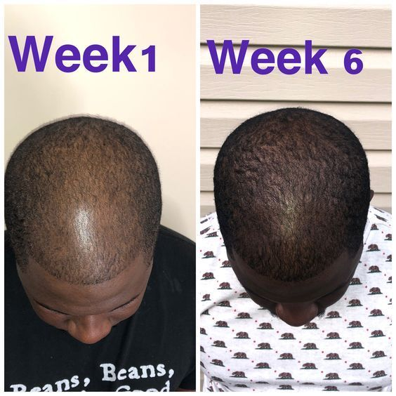 Hair Growth Secrets Using Natural Remedies For Longer Hair Natural Hair Regrowth Hair Growth Faster Hair Growth Secrets