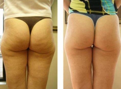 http://vitaminsnsupplements.kinja.com/thermocell-laser-body-slimming-1768177406