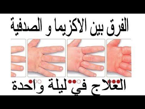 الفرق بين الاكزيما و الصدفية و وصفة للعلاج في ليلة واحدة Youtube Thumb Holding Hands