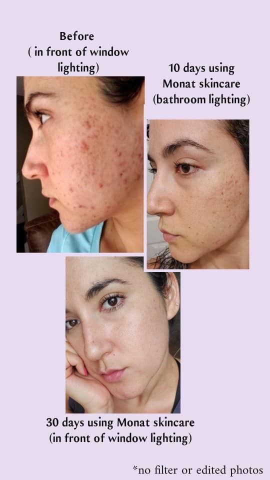 What Acne Skin Care Face Mask Face Skin Care Night Skin Care Routine