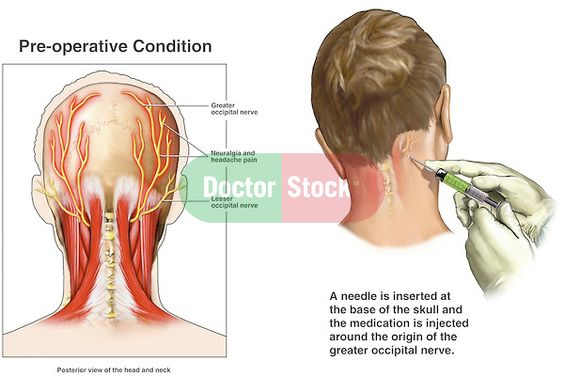 Search Google And Occipital Nerve Block On Pinterest
