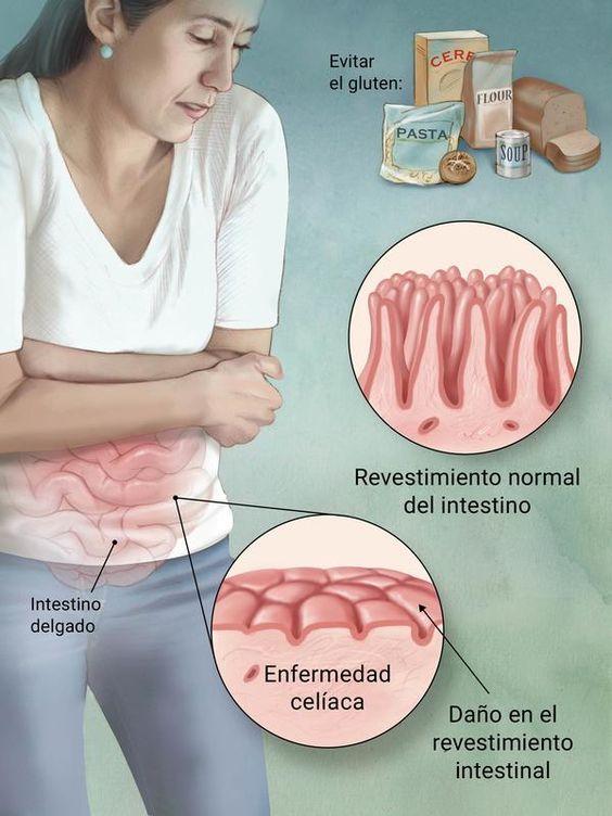 Comparación directa del revestimiento intestinal normal y el revestimiento intestinal dañado por la enfermedad celíaca.
