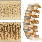 Osteoporosis – Healthy Eating for Healthy Bones