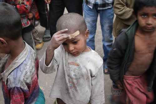 Nepalese child who was injured in the 2015 earthquake picture by Theirworld
