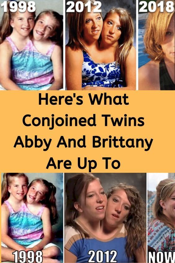 Here S What Conjoined Twins Abby And Brittany Are Up To Famous Twins Conjoined Twins Twin Sisters