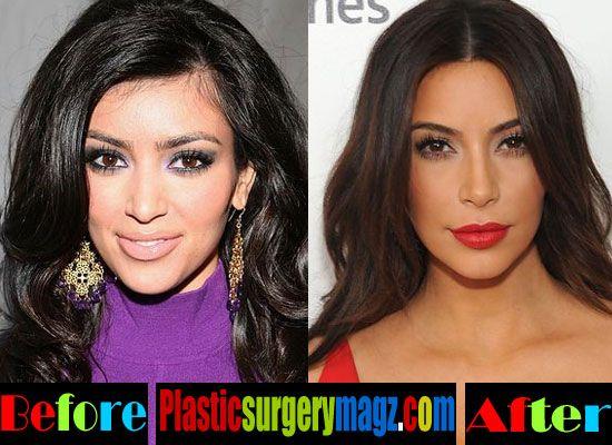 Kim Kardashian but Implants Before and After Kim Kardashian - plastic surgery consultant sample resume