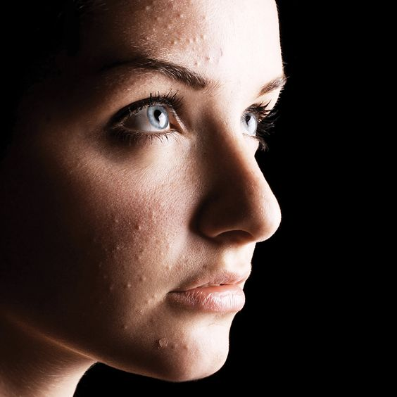 When Acne Attacks, Hexylresorcinol and Ethyl Linoleate Fight Back (part I)