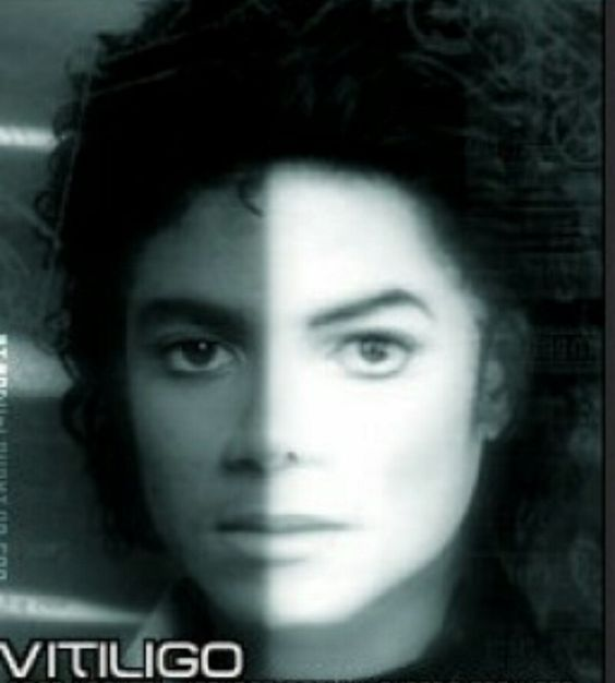 Again, it was only because of the skin disease he suffered from that changed the way he looked..