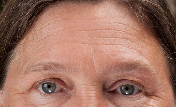Effective facial gymnastics for natural Chinese facelifts. Discover methods on how to get rid of forehead lines, under eye wrinkles, eye bags without surgery. Wendy Wilken's facial toning system is the ultimate anti-aging skin care tool http://www.facelift-without-surgery.biz/facial-workout-how-to-look-younger.html  #eraseeyebags #undereyewrinkletreatment #yogafacialexercises #remedycrowsfeet #faceexerciseseyewrinkles #facialexerciseprogram #naturalskincare #skintreatments #beautytips