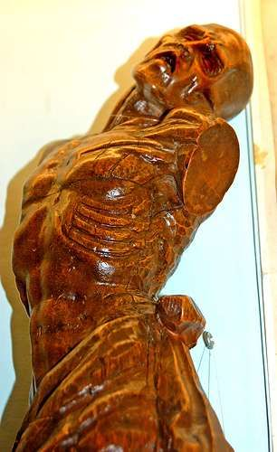 Lifelike Entrails Exhibits - Try Not to Lose Your Lunch at the Semmelweiss Medical Museum (GALLERY)