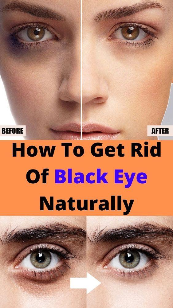 c16594289955ff883315a32a664c53df - How To Get Rid Of Black Eyes From No Sleep