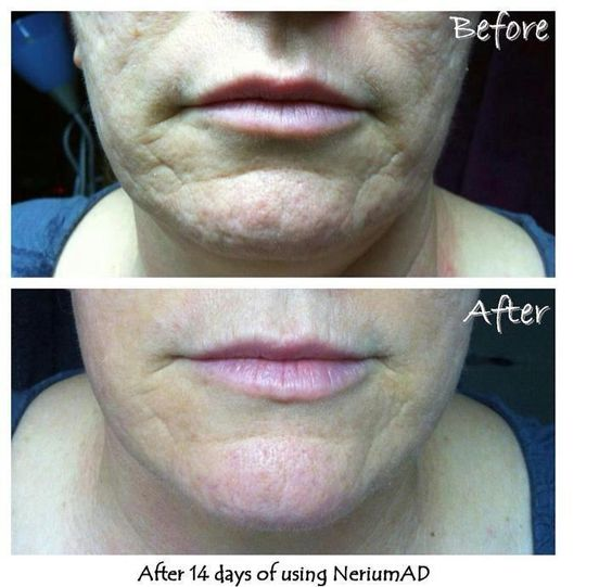 Nerium for acne scarring.  This is after only 14 days!!!