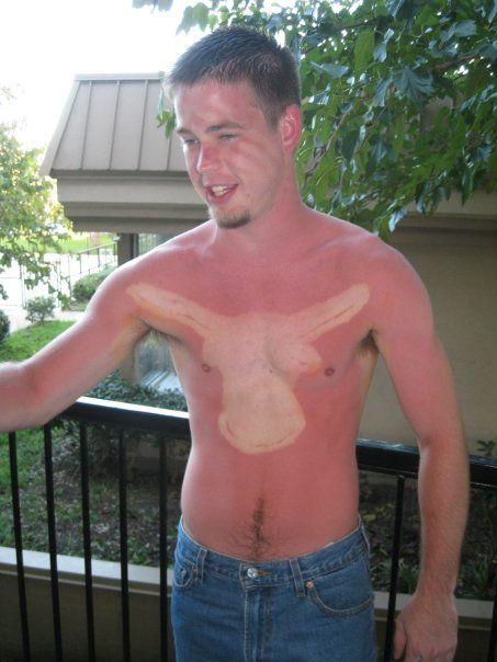 19 φοβερές φωτογραφίες που δείχνουν ότι δεν πρέπει να κάθεσαι στον ήλιο