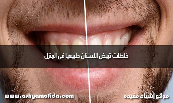 خلطات تبيض الاسنان طبيعيا فى المنزل Teeth Bleaching Bleach Teeth