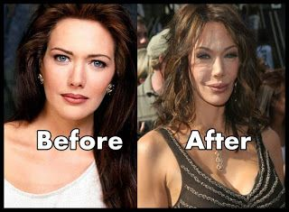 Hunter Tylo - what has she gone and done? She was so beautiful before that plastic surgery.: