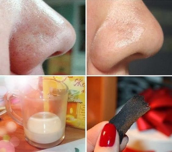 how to avoid blackheads on nose