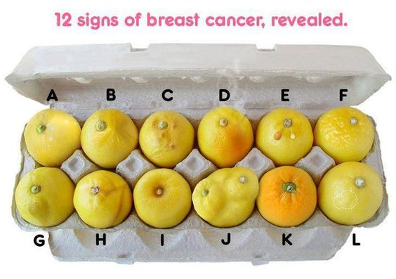 12 SIGNS OF BREAST CANCER, REVEALED:    Please share if you care.    A: Hardening  B : Pinching  C: Erosion  D: Red & Hot  E: New fluid  F: Dimpling  G: puckering  H: Growing vein  I: Nipple retraction  J: Asymmetry  K: Orange skin  L: Invisible lump