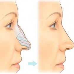 Rhinoplasty  resection line ..