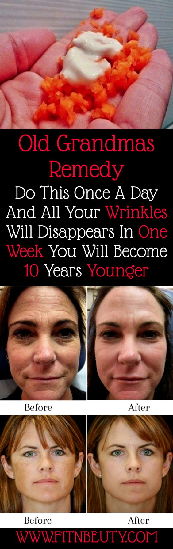 Old Grandmas Remedy Do This Once A Day And All Your Wrinkles Will Disappears In One Week You Will Become 10 Years Younger